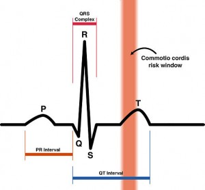 Commotio Cordis Risk Zone